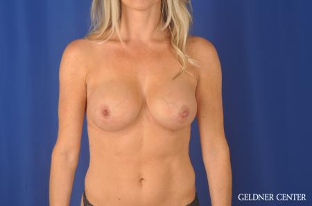 Breast Augmentation Hinsdale, Chicago 11861 -  After Image 1