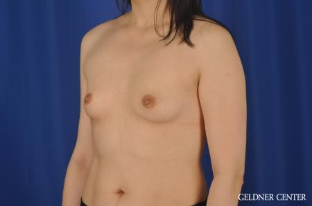 Breast Augmentation Hinsdale, Chicago 8751 - Before and After Image 4