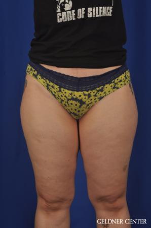Liposuction: Patient 44 - Before Image 1