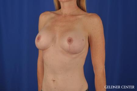 Chicago Breast Augmentation 4004 -  After Image 4