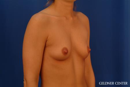 Breast Augmentation: Patient 181 - Before Image 2