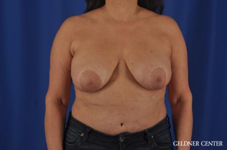 Liposuction: Patient 35 - Before Image 1