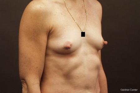 Chicago Breast Augmentation 2635 - Before Image 3