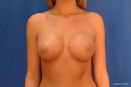 Chicago Breast Augmentation 2431 -  After Image 1