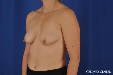 Chicago Breast Lift 4289 - Before and After Image 4