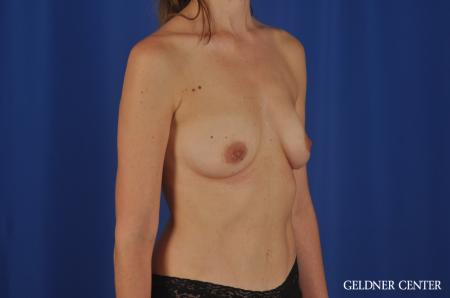 Chicago Breast Augmentation 4002 - Before and After Image 4