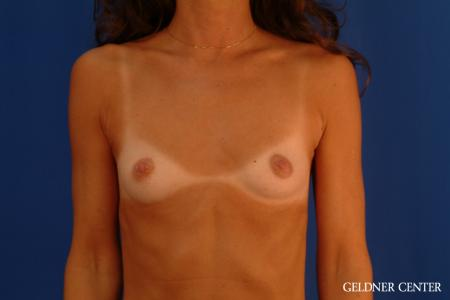 Breast Augmentation: Patient 113 - Before Image 1