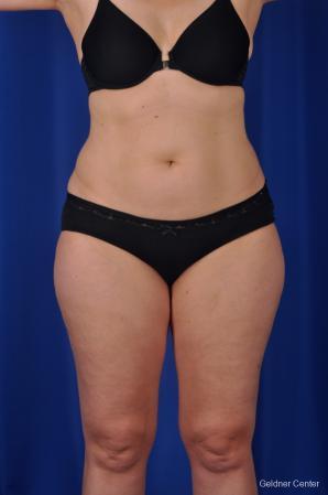 Liposuction: Patient 2 - Before Image