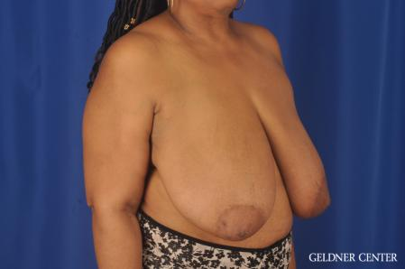 Breast Reduction: Patient 22 - Before Image 3