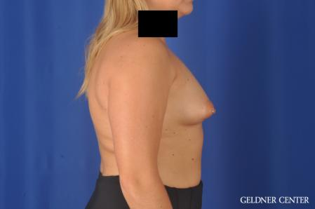 Breast Augmentation: Patient 179 - Before Image 3