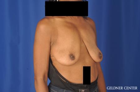 Breast Lift: Patient 22 - Before Image 3