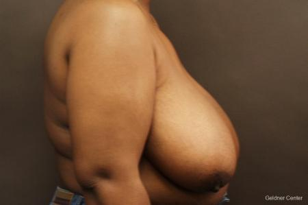 Chicago Breast Reduction 2406 - Before Image 2