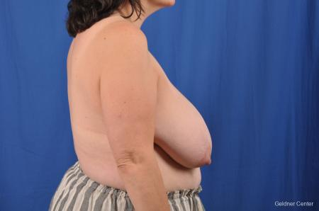 Breast Reduction: Patient 29 - Before Image 3