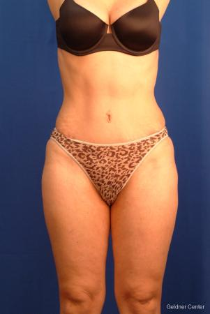 Tummy Tuck: Patient 8 - After Image 1