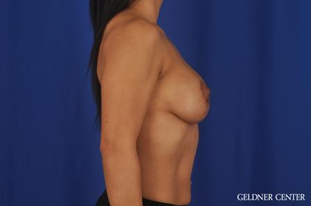 Breast Augmentation: Patient 185 - After Image 3