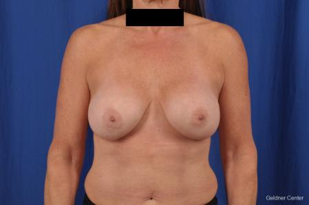 Breast Lift: Patient 43 - Before Image 1