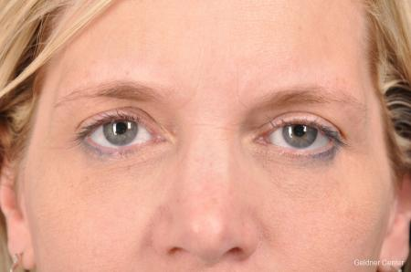 Eyelid Lift: Patient 9 - After Image 1