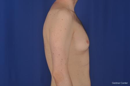 Gynecomastia: Patient 3 - Before Image 2