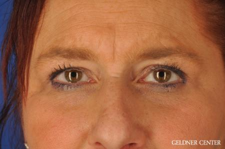 Brow Lift: Patient 4 - Before Image 4