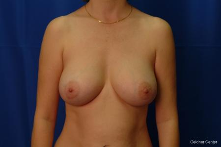 Chicago Breast Augmentation 2413 -  After Image 1