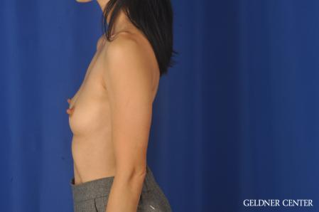 Breast Augmentation: Patient 152 - Before Image 4