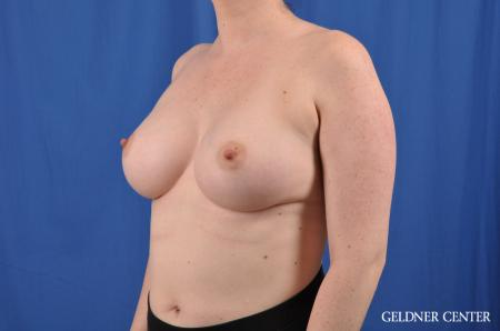 Breast Augmentation: Patient 135 - After Image 4