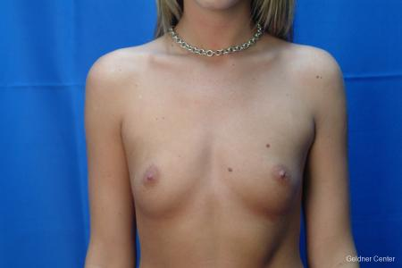 Chicago Breast Augmentation 2431 - Before Image 1