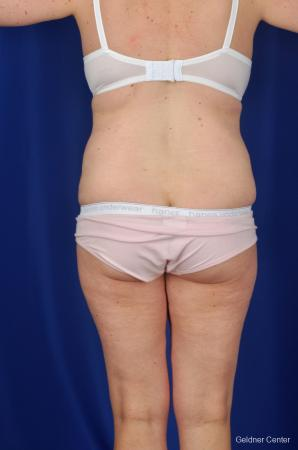 Tummy Tuck: Patient 7 - After Image 4