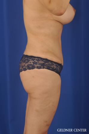 Lipoabdominoplasty: Patient 7 - After Image 3