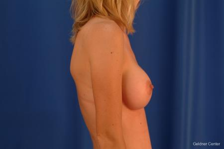 Breast Augmentation Streeterville, Chicago 2530 -  After Image 3