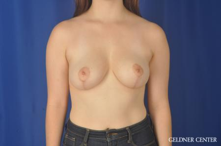 Breast Reduction: Patient 26 - After Image 1