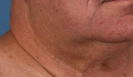 Skinpen For Men: Patient 4 - After 1