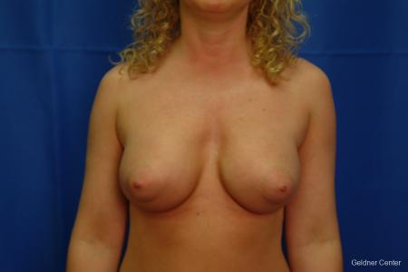 Breast Augmentation Lake Shore Dr, Chicago 2436 -  After Image 1
