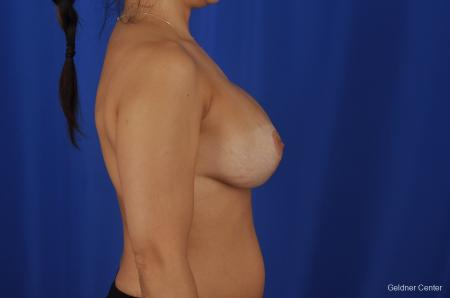 Chicago Breast Lift 2059 -  After Image 2