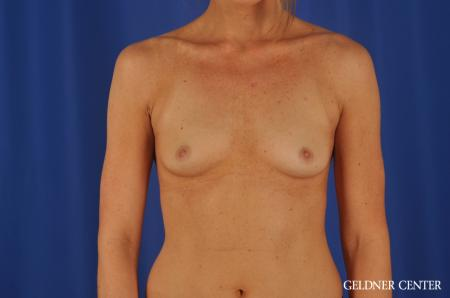 Chicago Breast Augmentation 8745 - Before Image 1