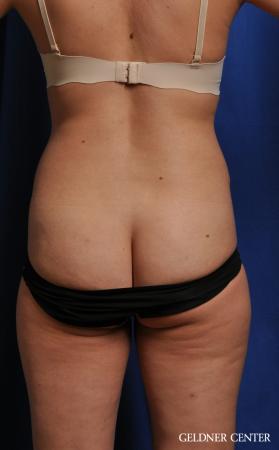 Liposuction: Patient 41 - Before Image 4