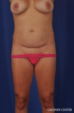 Abdominoplasty: Patient 5 - Before Image 1