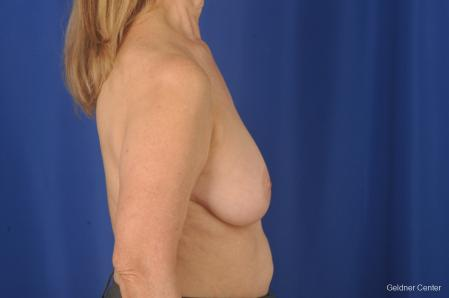 Breast Lift: Patient 17 - Before Image 3