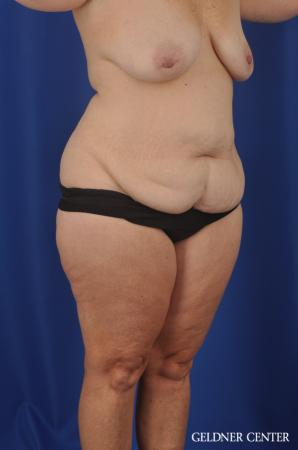 Abdominoplasty Patient 1 before and after photos - Before Image 2