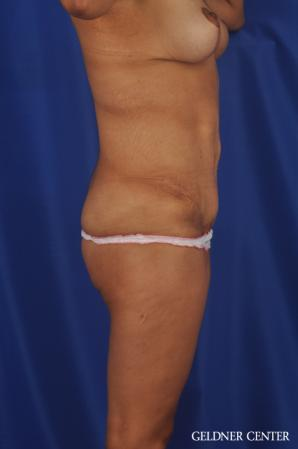 Tummy Tuck: Patient 33 - After Image 3