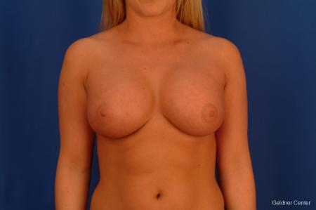 Chicago Breast Augmentation 2443 -  After Image 1