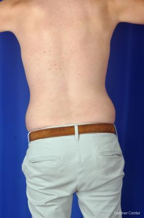 Liposuction For Men: Patient 3 - Before Image 4