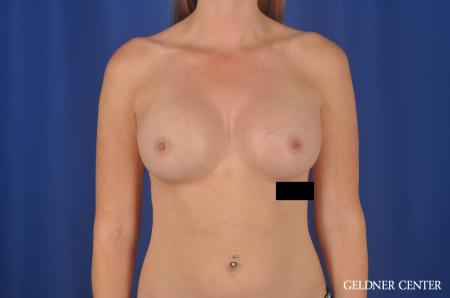 Breast Augmentation Lake Shore Dr, Chicago 6658 -  After Image 1