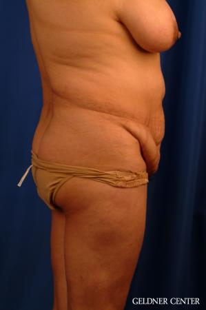 Vaser lipo patient 2629 before and after photos - Before Image 3