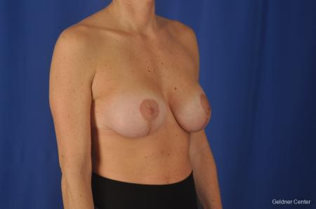 Breast Lift: Patient 20 - After Image 3