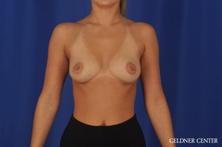 Breast Augmentation: Patient 109 - Before Image 1