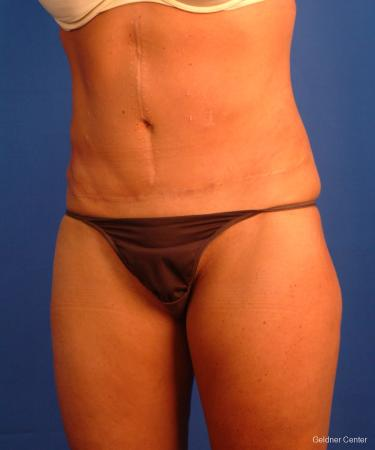 Liposuction: Patient 16 - After Image 4