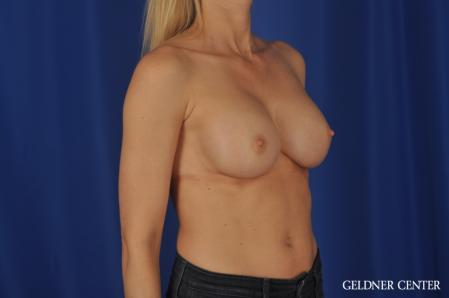 Breast Augmentation: Patient 168 - After Image 2