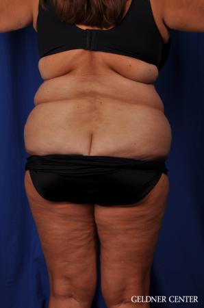 Lipoabdominoplasty: Patient 4 - Before Image 3