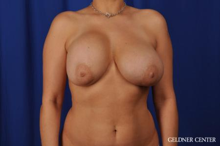 Chicago Breast Lift 5543 - Before Image 1